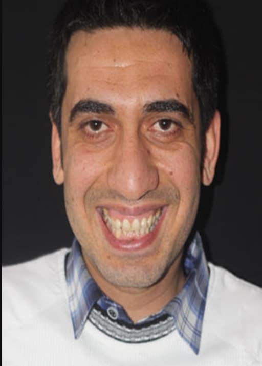 Ziraat Reklamı Kemal Sunal'a benzeyen oyuncu Mehmet Kurt
